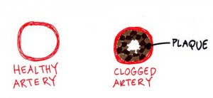 healthy vs clogged artery 300x138 Arteries