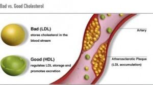 l-arginine for cholesterol