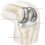 heart attack and knee replacement