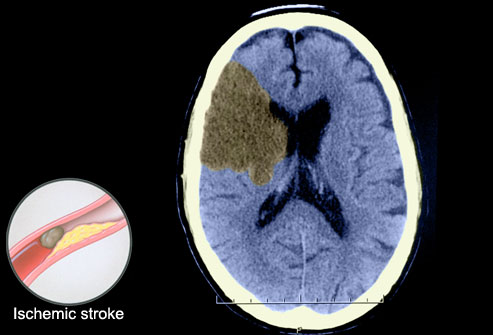 Strokes Now Striking Earlier In Life